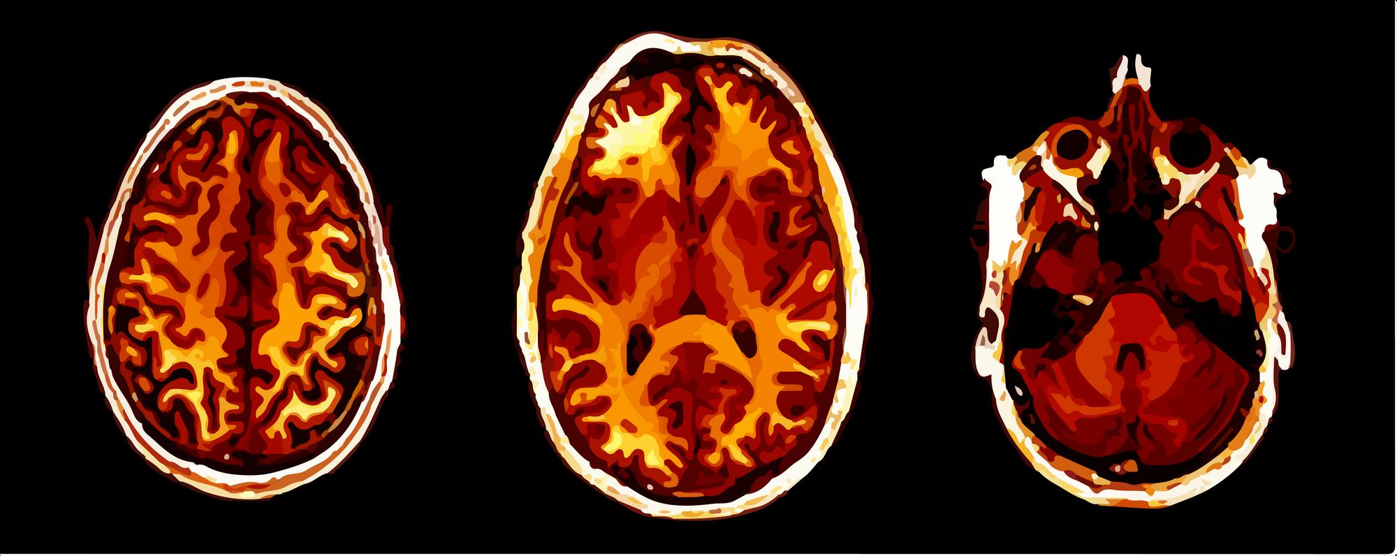 "three screenshots of brain images from ""birds-eye"" view"